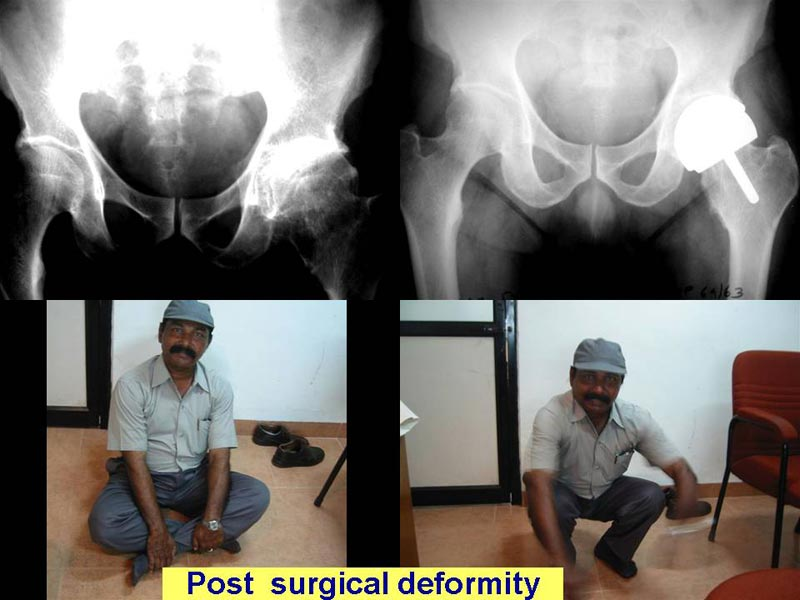 Post Hip Surgical Deformity