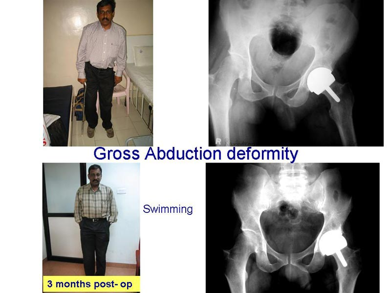 Hip Resuface Complex Cases - Gross Abduction Deformity