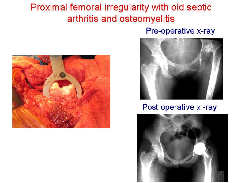 Proximal femoral irregularity with old septic arthritis and osteomyelitis