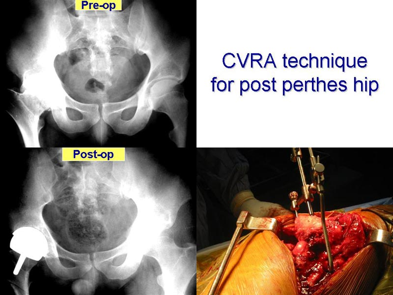 Hip Resuface Complex Cases - CVRA Technique for Post Perthes